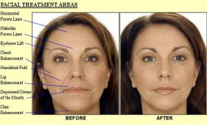 facial treatment costmetics without surgery